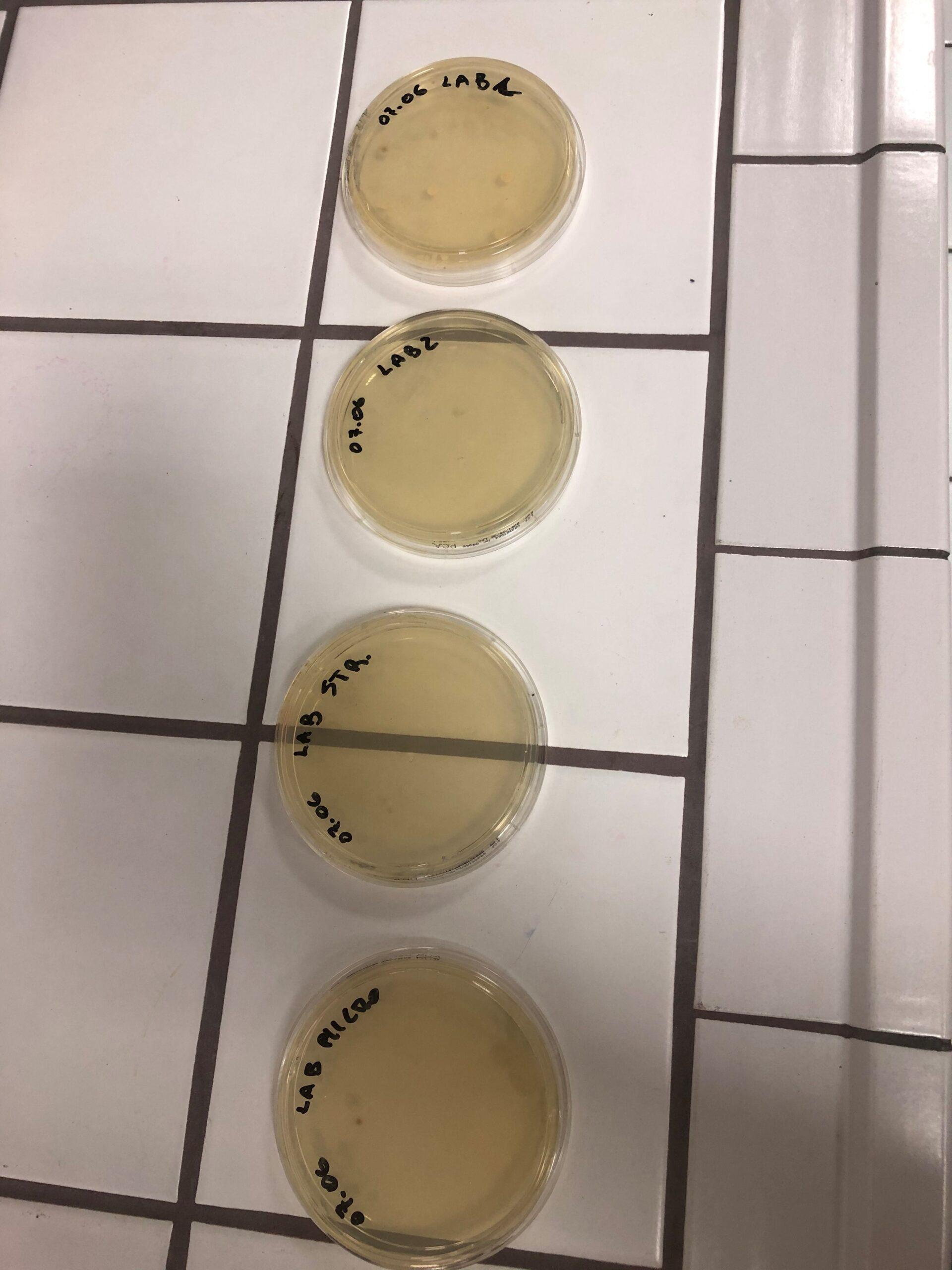 Rilevamento microbiologico - Test di laboratorio ACA S.p.A